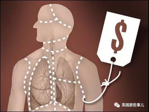 器官移植-4.jpg